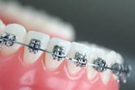 ortodoncia-estandard